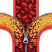 cholesterol-policosanol-efficacite