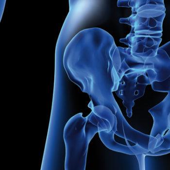 osteoporose-sante-publique
