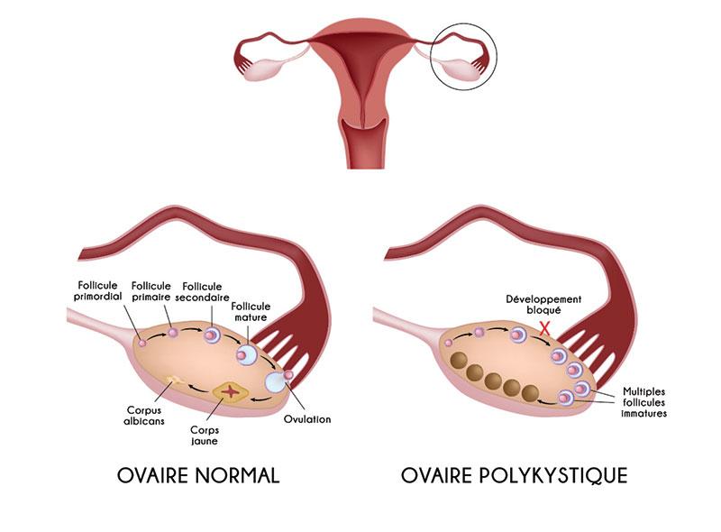 schéma ovaires sain / SOPK